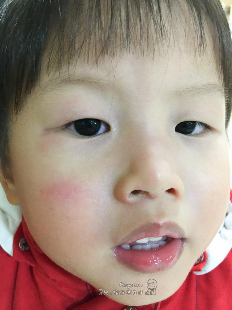 結膜炎 感冒轉成紅眼別輕忽