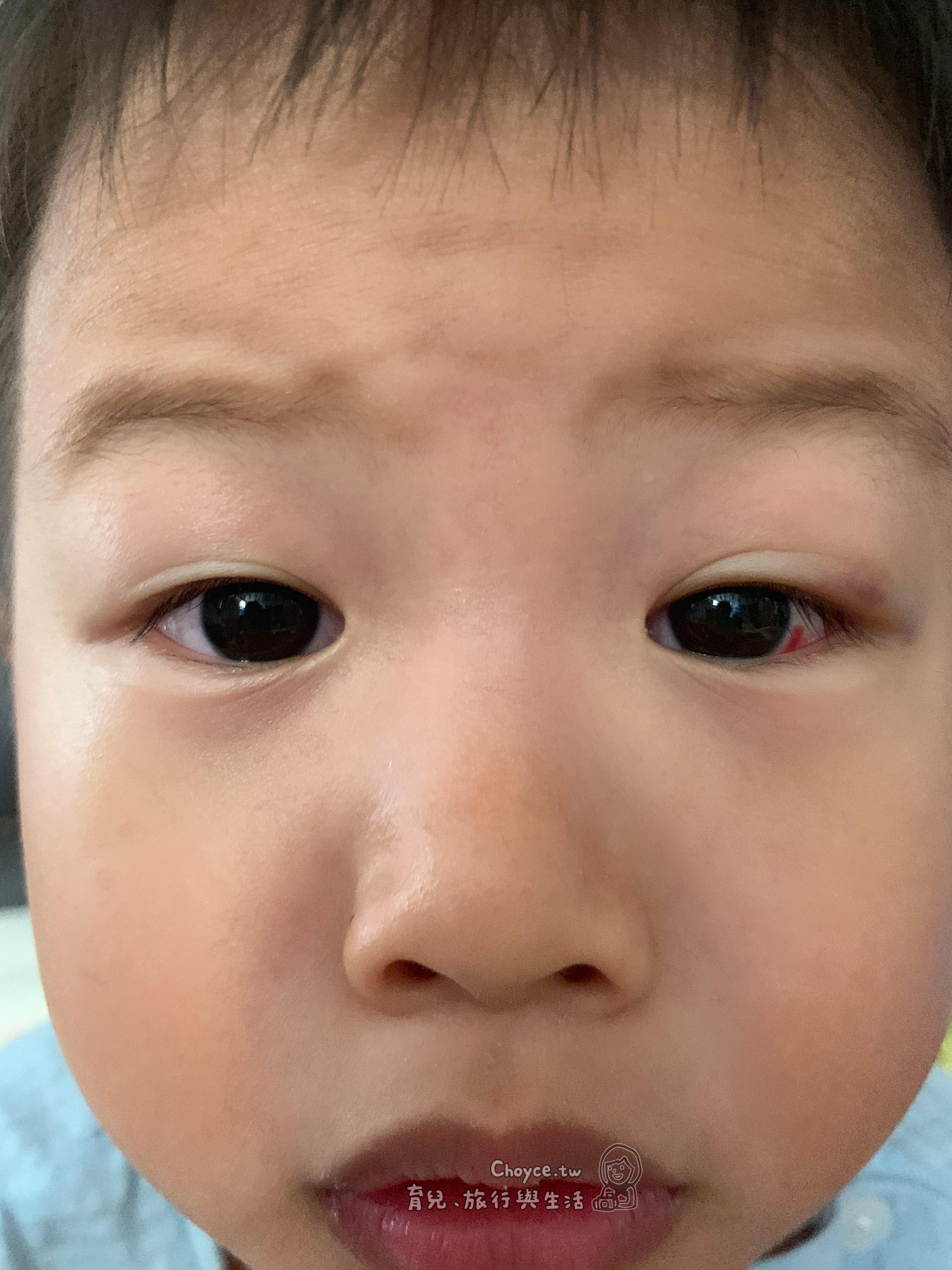 急性結膜炎 俗稱的「紅眼症」 具有高度傳染性 又以夏季最為流行
